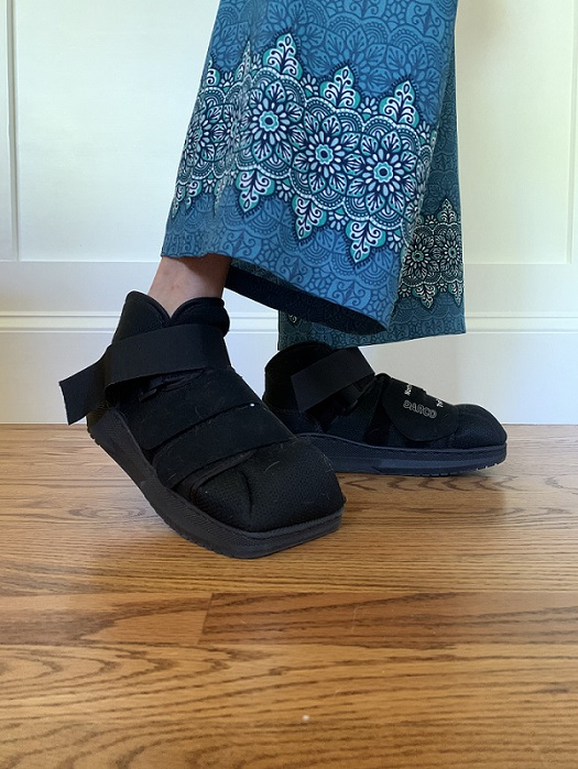 black surgical boots being worn after minimally invasive bunion surgery
