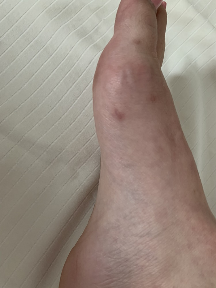 three tiny scars remaining after minimally invasive bunion surgery