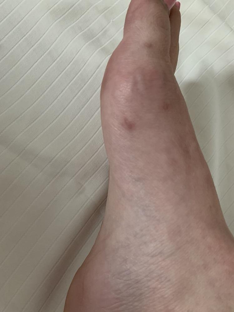 three tiny scars remaining after minimally invasive bunion surgery
