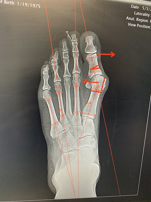 x-ray of left foot moderate bunion