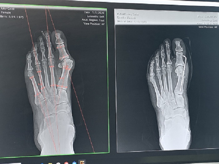 Before and after x-ray of bunion on right foot with a temporary pin holding joint in place
