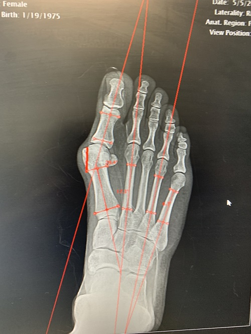 x-ray of severe bunion on right foot