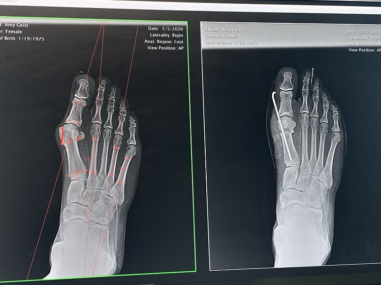 Before and after x-ray of bunion surgery with temporary pin holding realigned joint