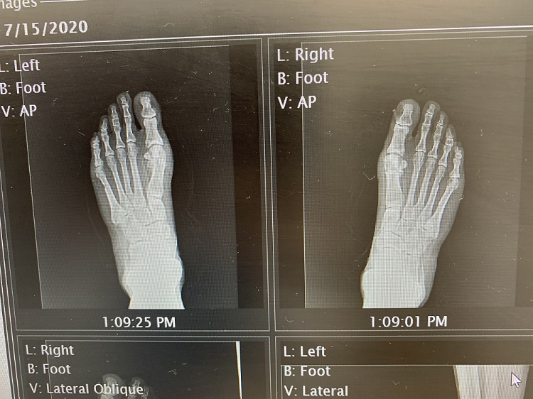 right and left foot x-ray after successful bunionectomy